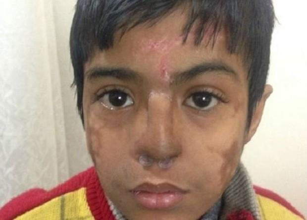 O nariz de Arun Patel ficou desfigurado após uma pneumonia (Foto: S Niazi)