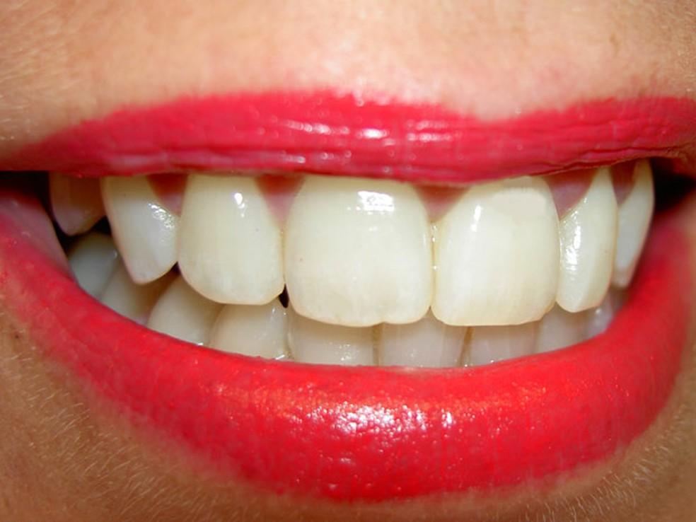 Testes em ratos revelam que, estimuladas, células criam preenchimentos naturais para buracos no esmalte dental.