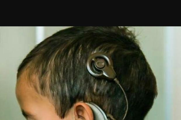 Implante tem o objetivo de substituir funções das células do ouvido interno de pessoas com surdez profunda