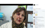 'Já atingiram meu olho, mas não vão me calar': Professora agredida por aluno denuncia mensagens de ódio